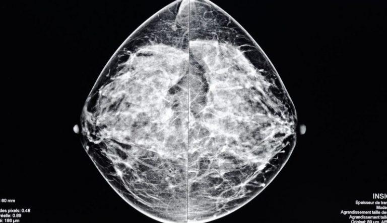 mammoexamen
